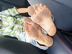 Leah's Homeless Feet *Warning Graphic Material*